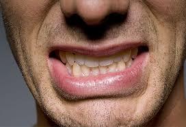 أسناا