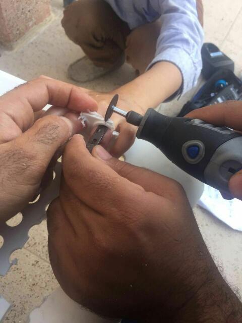 إنقاذ أصابع طفل علقت بكريي بلاستك بسيهات (248391982) 