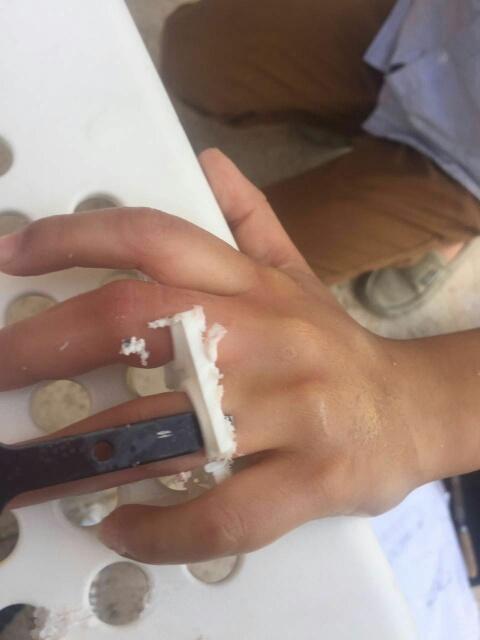 إنقاذ أصابع طفل علقت بكريي بلاستك بسيهات (248391986) 