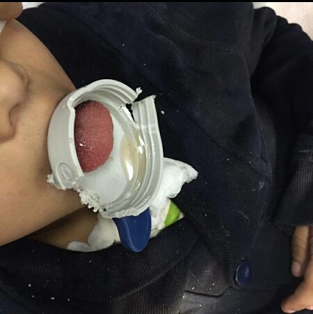 إنقاذ طفل من احتباس حلقة بلاستيكية داخل حلقه بـ #الدمام (2)