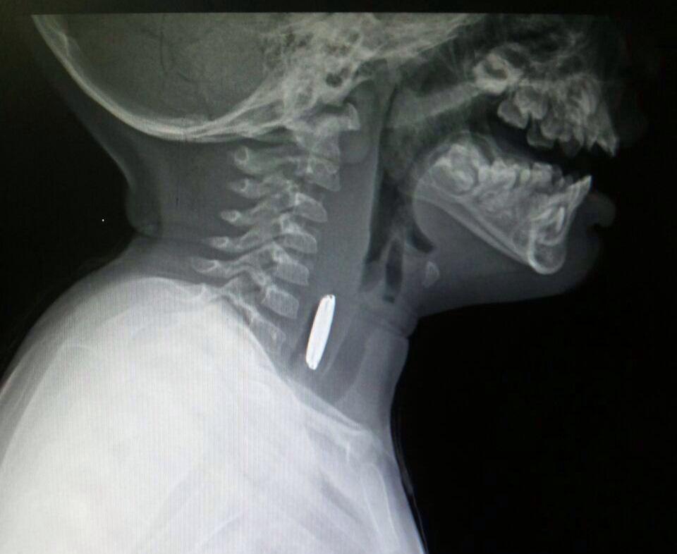 اخراج بطارية صلبة من مريء رضيع بمستشفى المجاردة العام (3)