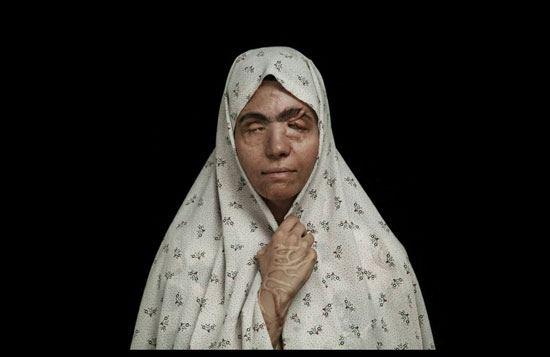 اسيد الباسيج يشوه 380 امرأة في إيران (1)