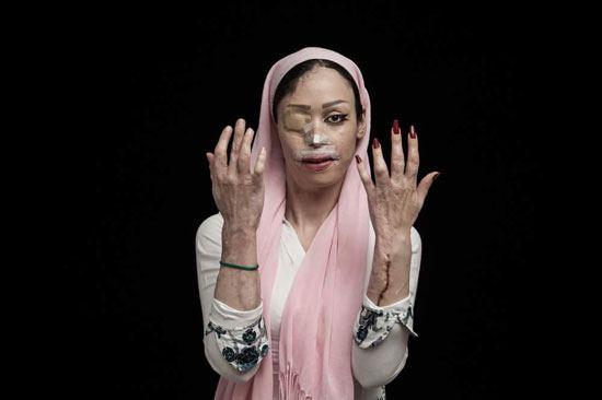 اسيد الباسيج يشوه 380 امرأة في إيران (2)