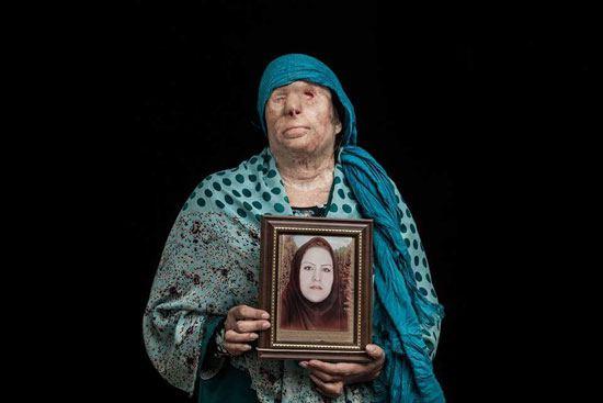 اسيد الباسيج يشوه 380 امرأة في إيران (4)