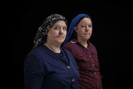اسيد الباسيج يشوه 380 امرأة في إيران (5)