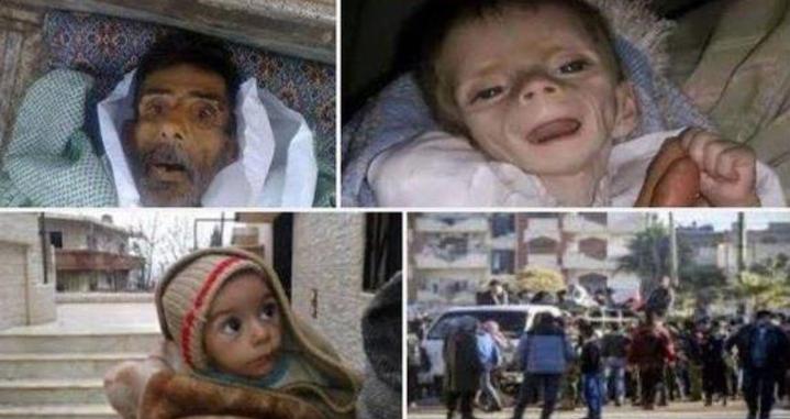 اطفا سوريا يموتون جوعا (1)