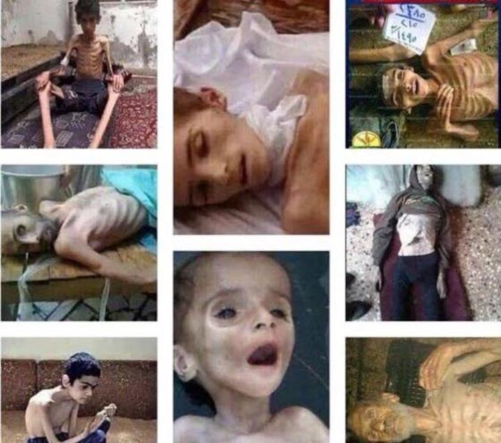 اطفا سوريا يموتون جوعا (2)