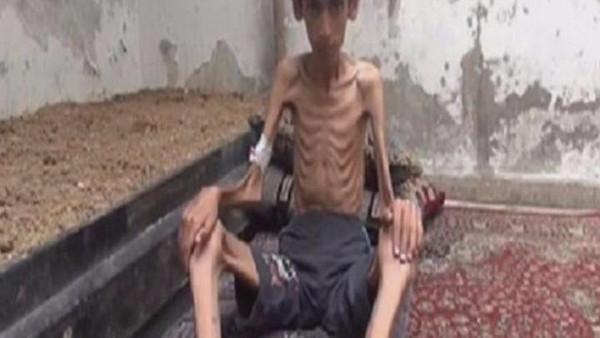 اطفا سوريا يموتون جوعا (3)