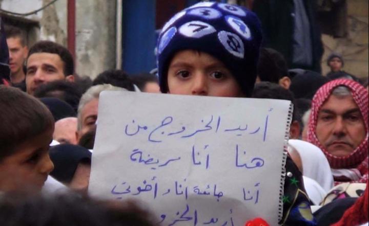 اطفا سوريا يموتون جوعا (4)