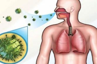 مرض السل .. طرق الوقاية ونصائح للمرضى - المواطن
