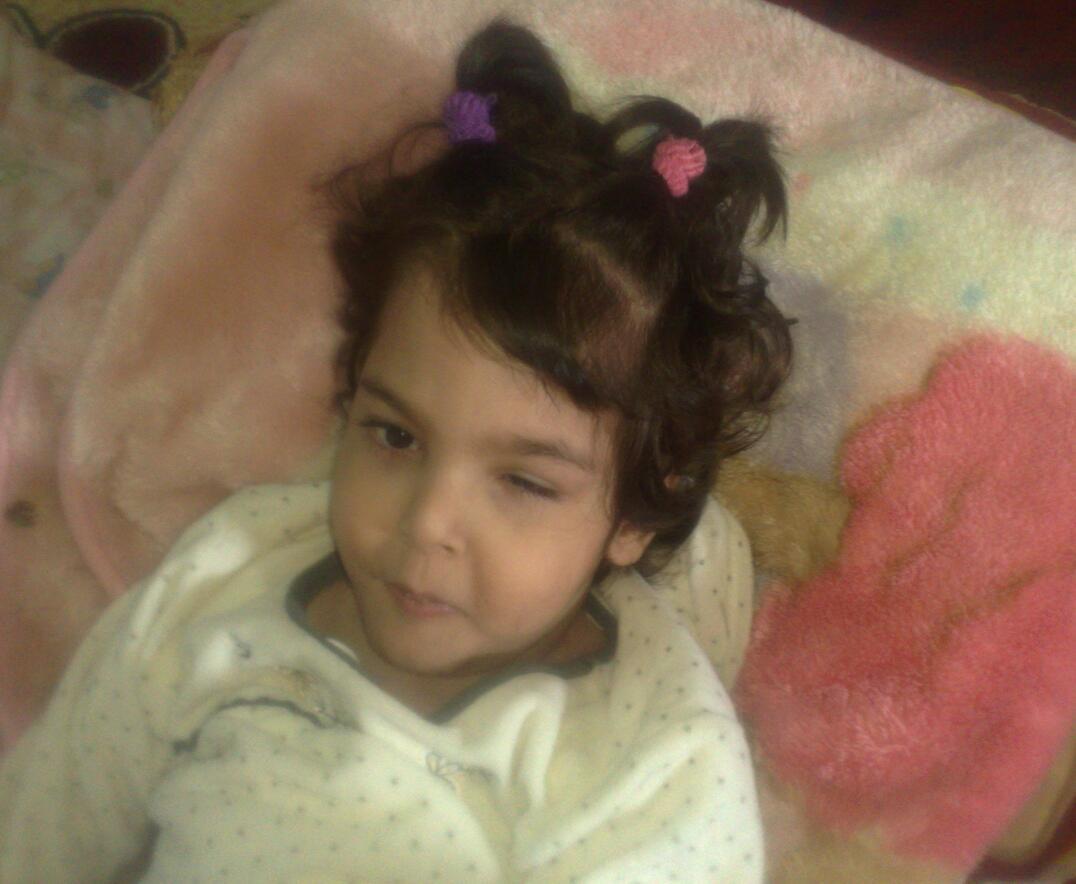 """الطفلة """"أروى"""".. كفيفة وتعاني ضمورًا بالمخ وتحتاج العلاج بالخارج - المواطن"""