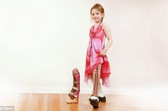 قصة طفلة عانت قِصر ساقها وكيف نجت من البتر في اللحظات الأخيرة - المواطن