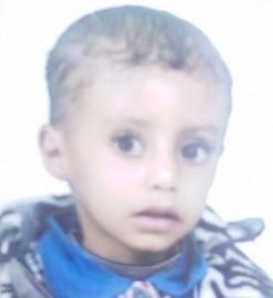 طفل يمني يحتاج زراعة قوقعة سمعية بمستشفى متخصص - المواطن