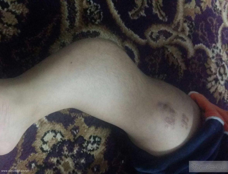 الطفل هشام يعاني من هشاشة العظام (5)