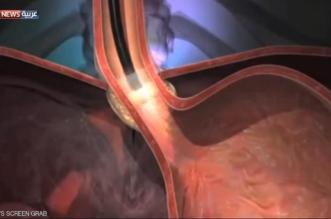 باحثون: جراحة المعدة علاج قياسي للسكري - المواطن