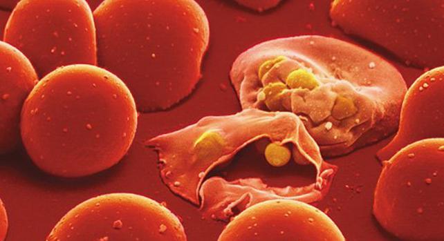 الملاريا