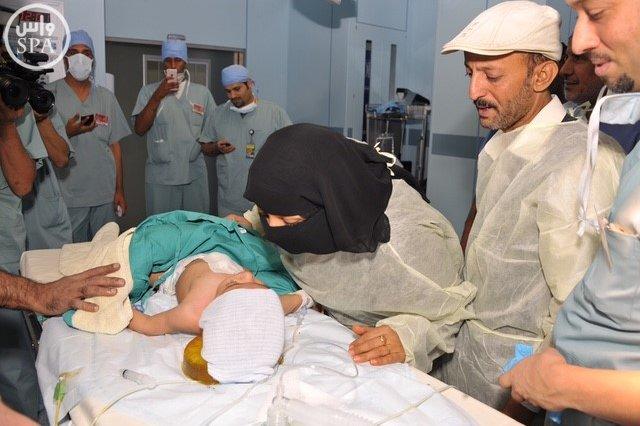 المملكة أجرت عمليات فصل سيامي لأطفال من 19 دولة (1)