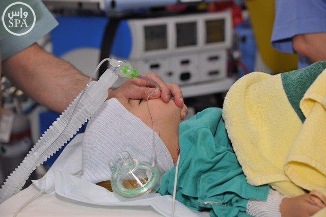 المملكة أجرت عمليات فصل سيامي لأطفال من 19 دولة (4)