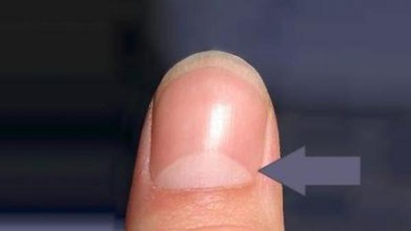 الهلال الابيض على الأصابع