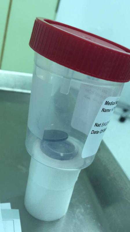 بريدة.. استخراج عملة معدنية من طفل بمستشفى الولادة والأطفال 1