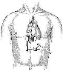 تخدير موضعي لتحرير قلب ثمانينية1