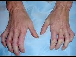 علامات تكشف إصابتك بمرض تصلب الجلد - المواطن