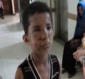 تقرير عن اليمن