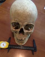 جمجمة-امرأة-عمرها- 3800 سنة