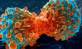 دراسة: 20% من السرطانات يمكن تجنبها باتباع أسلوب حياة صحي - المواطن