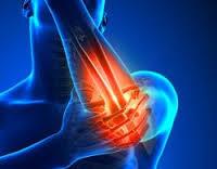 مرضى الروماتيزم أكثر عُرضة للإصابة بارتفاع ضغط الدم - المواطن