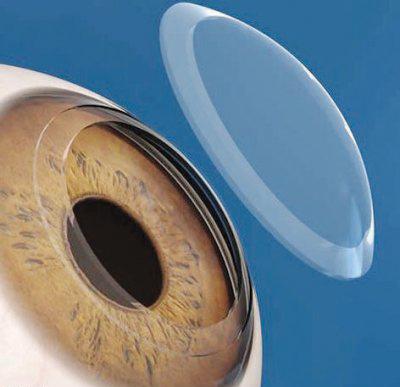 زراعة عدسة داخل العين
