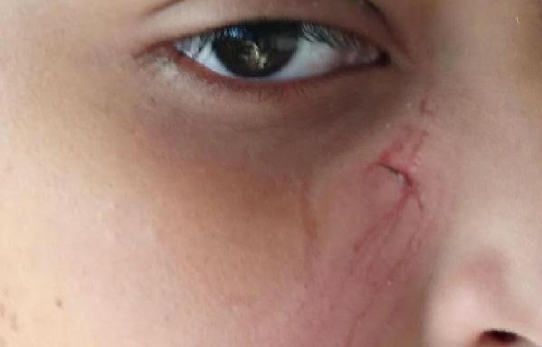 ضرب طالب