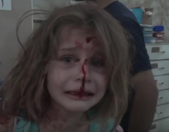 طفلة سورية الدماء تغطي ووجهها