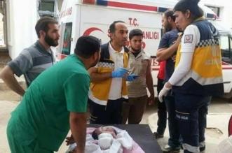 كيماوي الأسد يظهر على المواليد .. طفل برأسين في إدلب والحالة مستعصية - المواطن