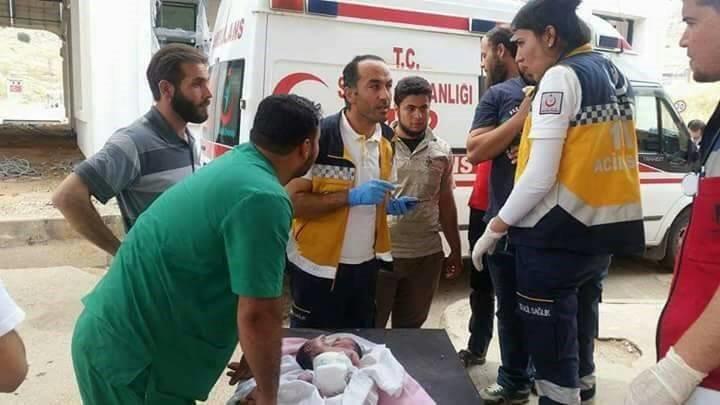 كيماوي الأسد يظهر على المواليد .. طفل برأسين في إدلب والحالة مستعصية