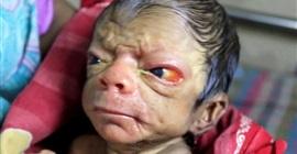 طفل حديث الولادة يظهر في الثمانين من عمره