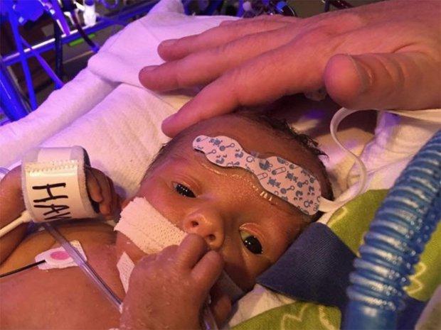 طفل حديث الولادة يودع توءمه في لقطة مؤثرة 1