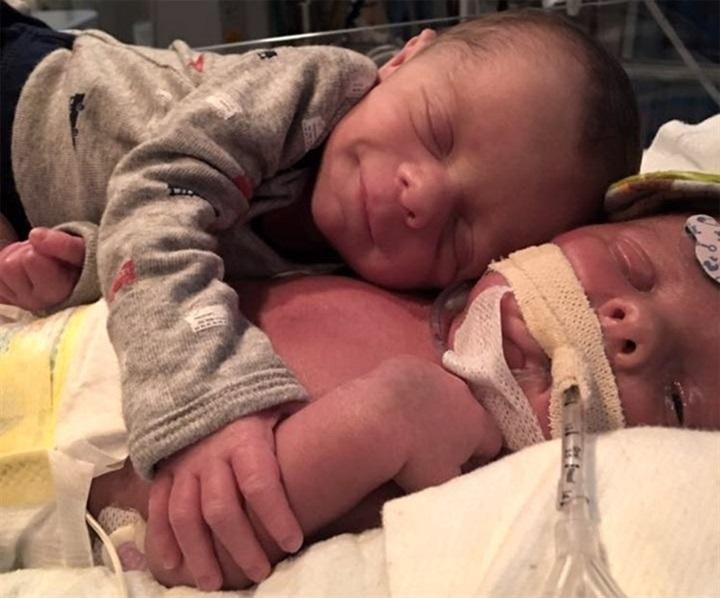 طفل حديث الولادة يودع توءمه في لقطة مؤثرة