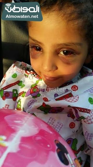 طفل مصاب بيشة1