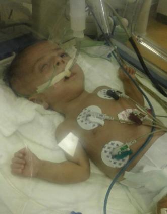 طفل يصارع الموت بمستشفى الأطفال  الطائف