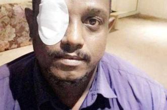 عقال طائر يُفقد عامل ورشة بصره في جدة - المواطن