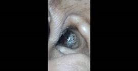 شاهد.. عنكبوت داخل أذن سيدة يُسبب لها صداعًا! - المواطن