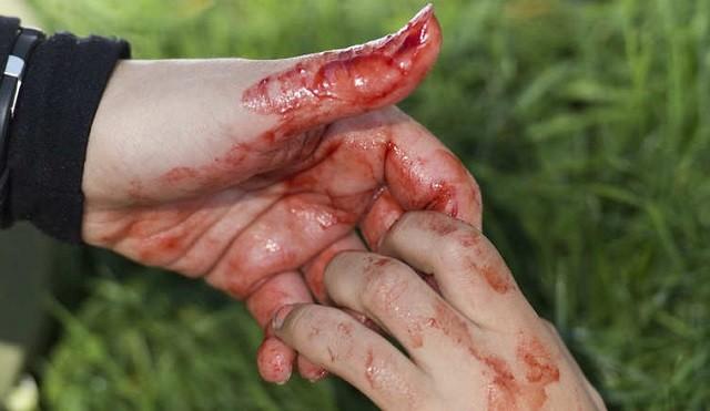 قتل-دم