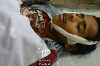 قناصة الحوثي تغتال البراءة في تعز.. و5 مجازر مدنية خلال يناير - المواطن