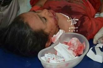 الحوثيون قتلوا 1224 مدنيًا وأصابوا 1220 بينهم 332 طفلاً و129 امرأة منذ يناير - المواطن