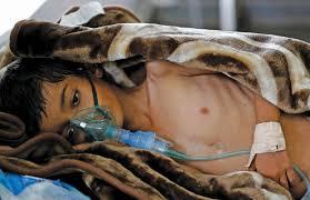بقيادة المملكة.. 4 دول تحدد التدابير الإنسانية والاقتصادية في اليمن - المواطن
