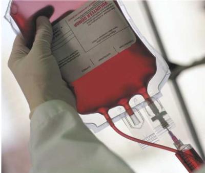 نقل دم كيس-دم