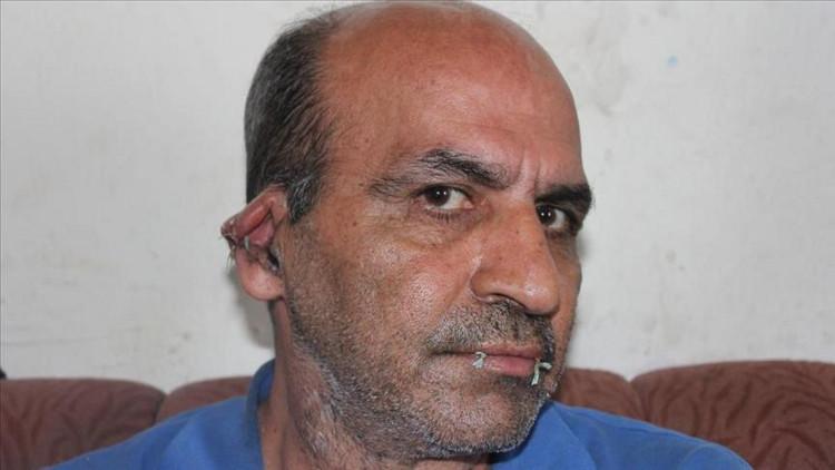 . لاجئ إيراني في تركيا يخيط فمه وأذنيه