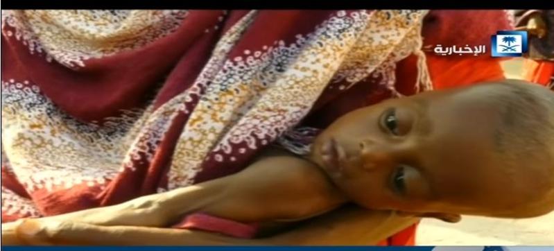 أكثر من 5 ملايين شخص متأثر بالجفاف في الصومال