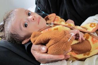 المجاعة تهدد اليمن ومنظّمات أممية تكشف بالأرقام نتائج الانقلاب - المواطن